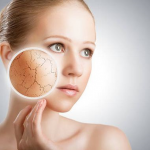 5 Things You Can Do to Prevent Dry Skin